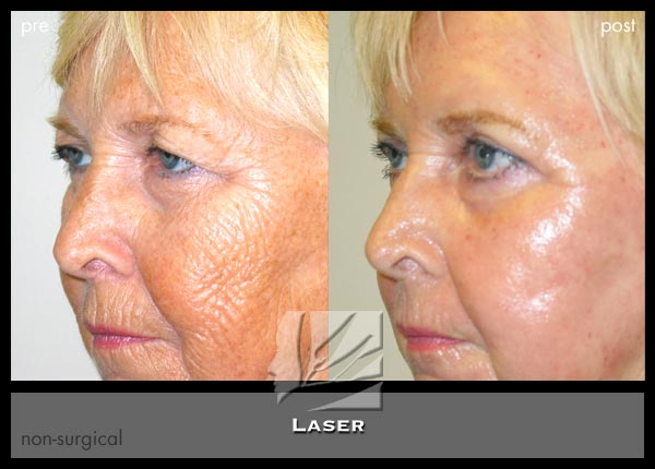 Laser Amp Light Therapies Dr Prendiville