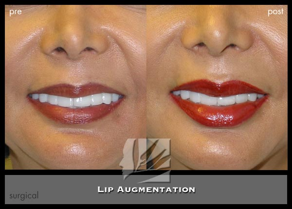 Lips Augmentation Dr Prendiville