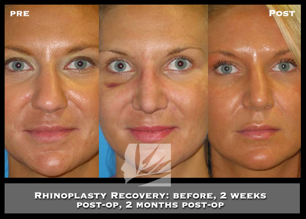 Rhinoplasty Recovery Time How Much Do I Need